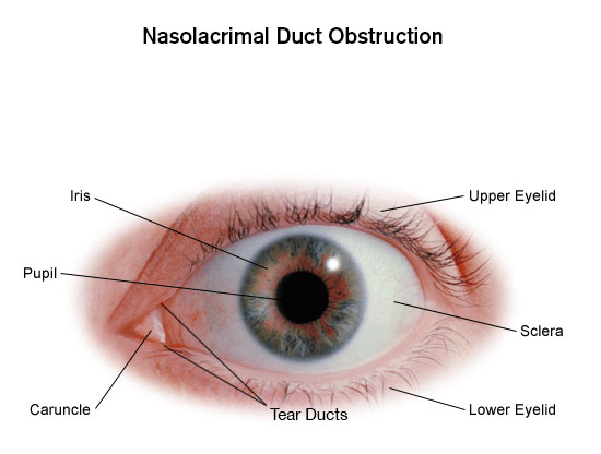 Swelling in tear duct