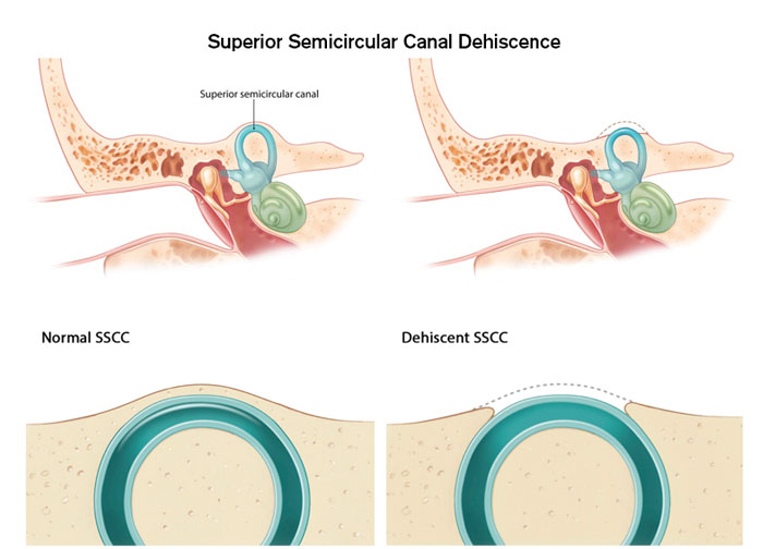 Superior Semicircular Canal Dehiscence - Brigham and Women's
